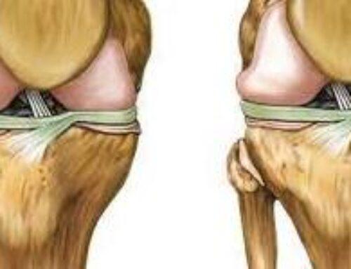Nuevo tratamiento de la osteoartrosis